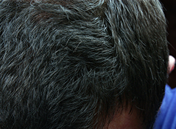 """Just For Men"" Haircolor Sparks Class-Action Suit"